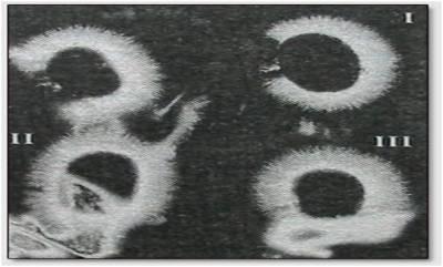 Фотографии Ауры по методу Кирлиан, чакры